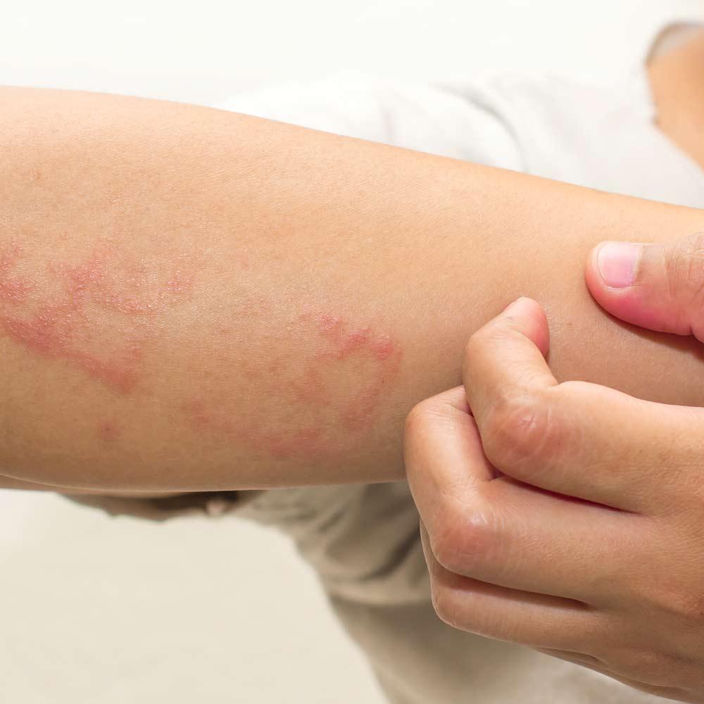 Empfindliche und allergische Haut