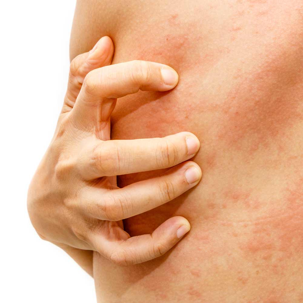 Irritative Kontaktdermatitis (IKD)