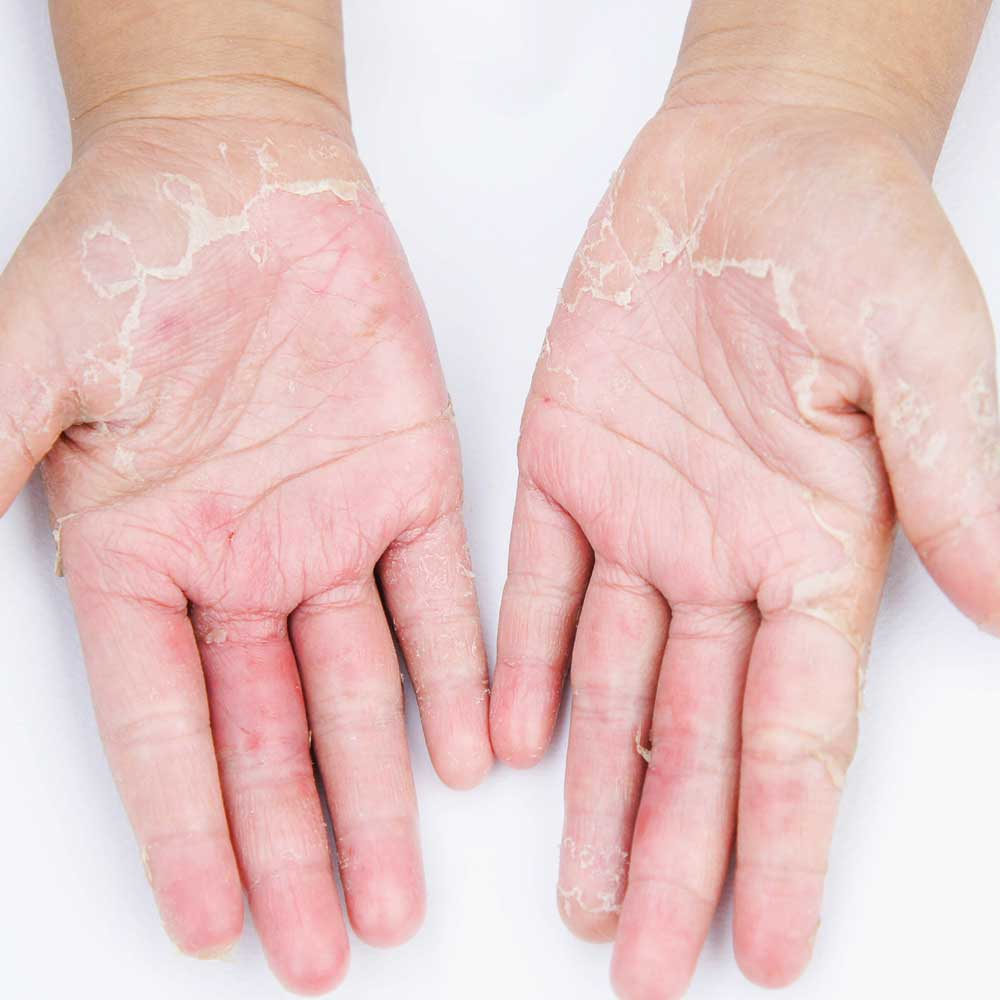 Allergische Kontaktdermatitis (AKD)