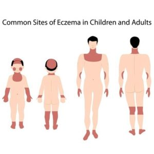 ceramol-hautpflege-atopische-dermatitis