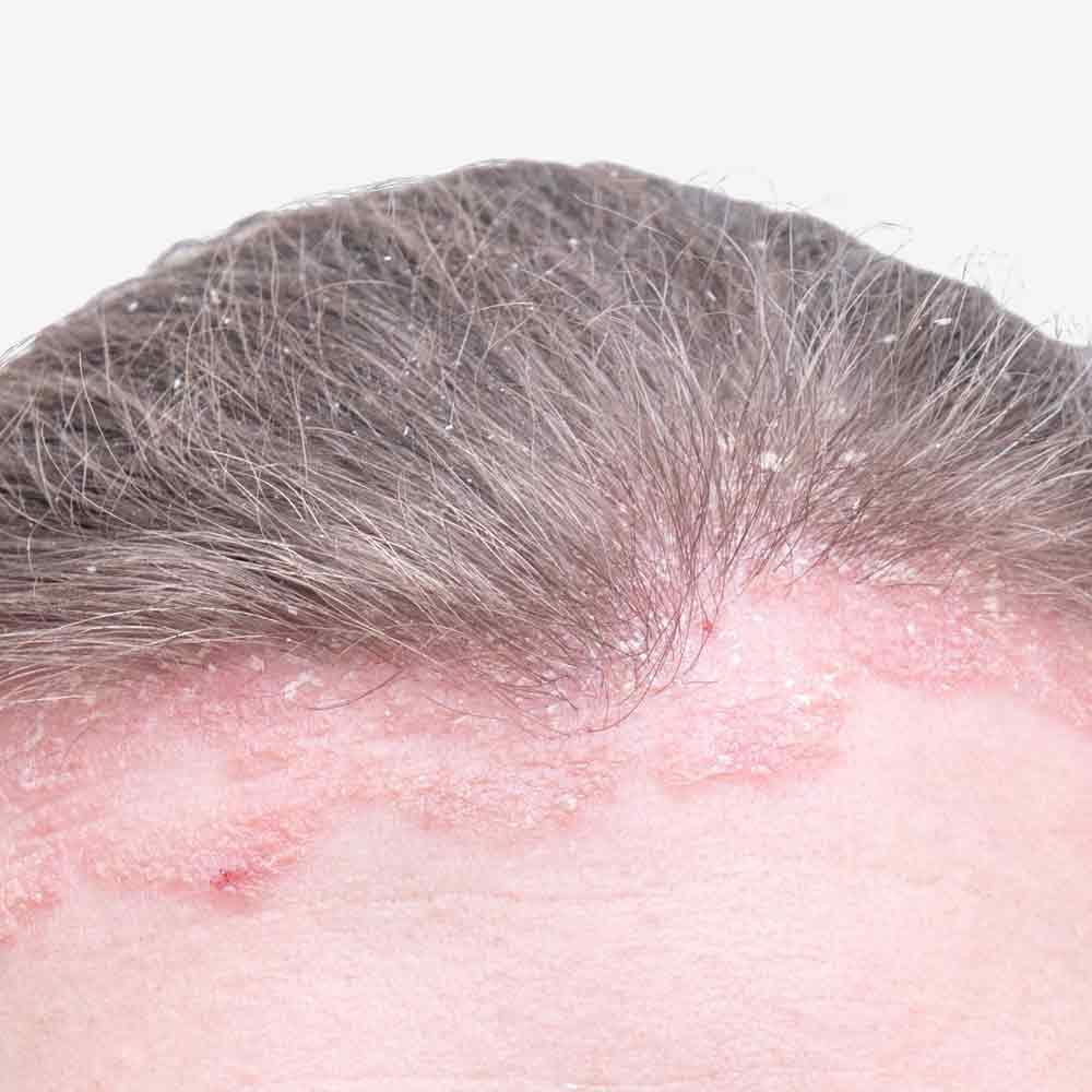 Ekzem auf der Kopfhaut